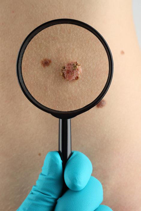 Behandlung von Hautveränderungen wie Muttermale oder Hautkrebs
