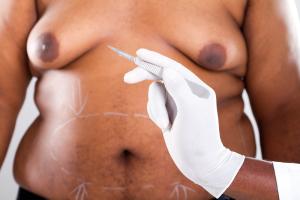 Große männliche Brust - Gynäcomastie