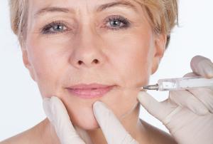 Dr. Moser - Faltenbehandlung mit Hyaluronsäure in der Facharztordination von Dr. Moser in 4400 Steyr